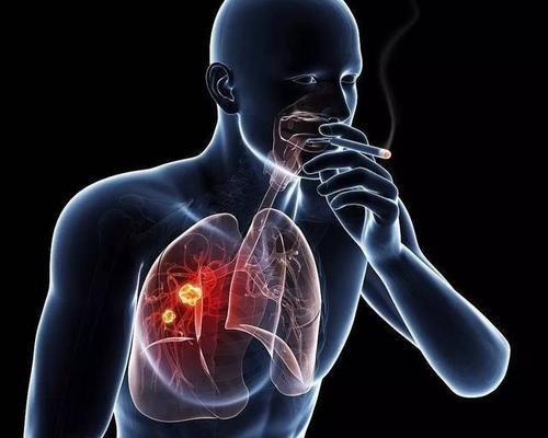 预防肺癌,从戒烟和增加室内空气中的负氧离子做起